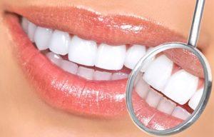 художественная реставрация зубов цены в Москве