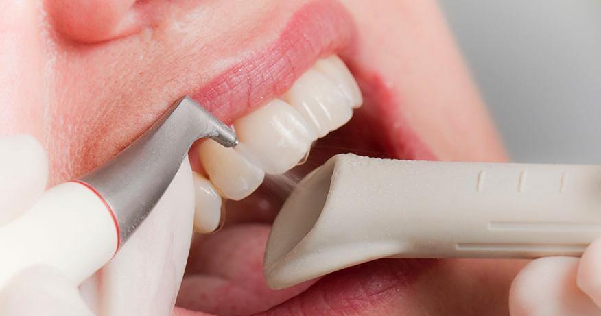 Стоматология чистка зубов ультразвуком цена