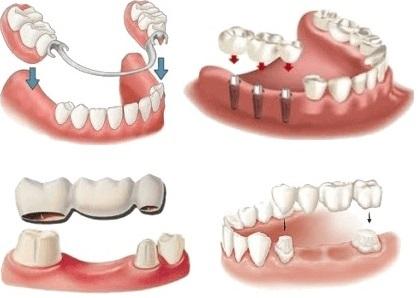 Постоянное протезирование зубов виды и цены Москва