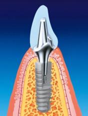 стоимость экспресс имплантации зубов
