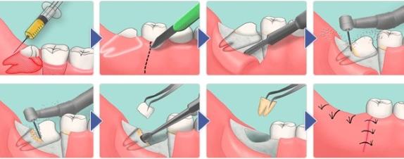 удаление ретинированного дистопированного зуба цена