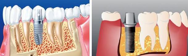 имплантация зубов цена в москве под ключ