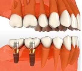 дешевая имплантация зубов в москве недорого