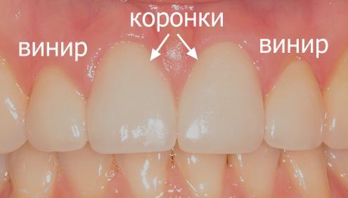 эстетическая реставрация зуба виниром