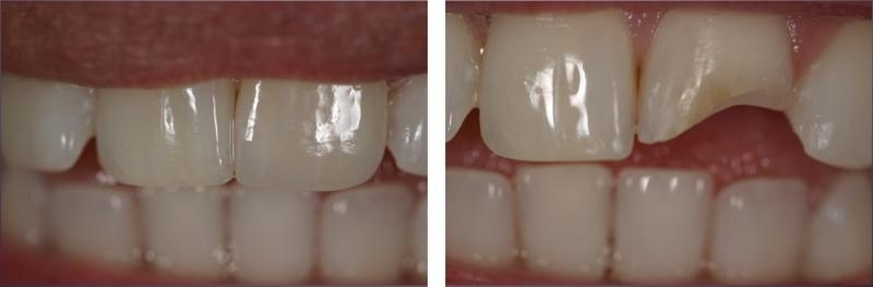 цена реставрации передних зубов Москва