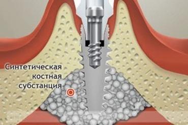 имплантация зубов под ключ цена синуслифтинга