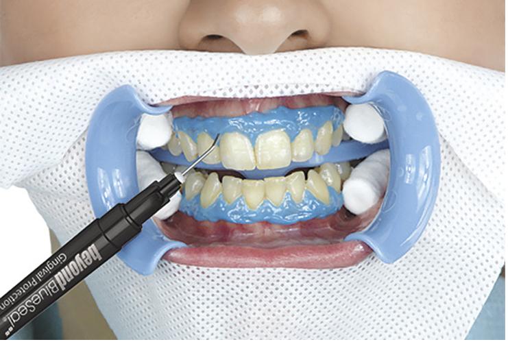 Процесс отбеливания зубов в Москве