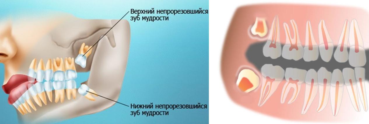 удаление зуба мудрости на верхней челюсти цена