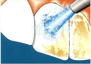 безопасность отбеливания зубов цена Москва