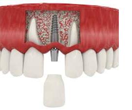 сколько стоит имплантация 1 зуба Москва