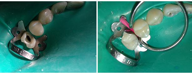сколько стоит лечение зубов без боли в москве