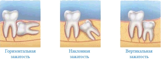 удаление зуба мудрости на нижней челюсти цена