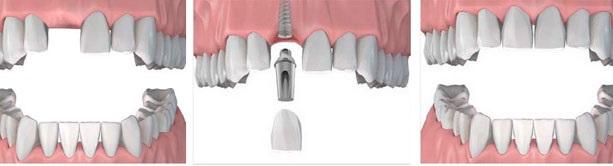 имплантация зубов стоимость одного зуба Москва