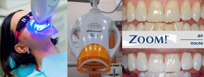 Клиническое отбеливание зубов в стоматологическом центре.